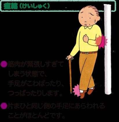 痙縮(けいしゅく)